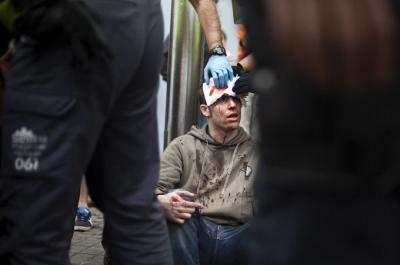 Pau Andaluz tras ser víctima de la actuación policial en Barcelona el 12 de octubre de 2012 | Foto: Robert Bonet