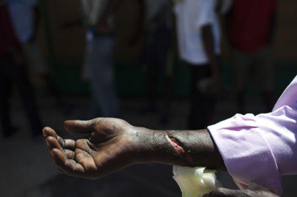 Mamadou, de Mali, muestra la herida que se hizo tratando de saltar la valla de Melilla desde Marruecos | Foto: Ángel Navarrete